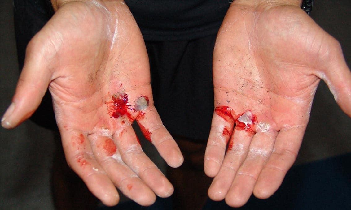 Mozole na rukách v CrossFite a ako im predísť